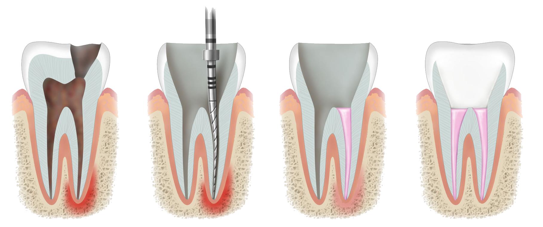 precio de endodoncia en tijuana