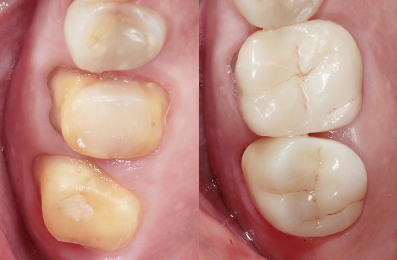 coronas dentales precios