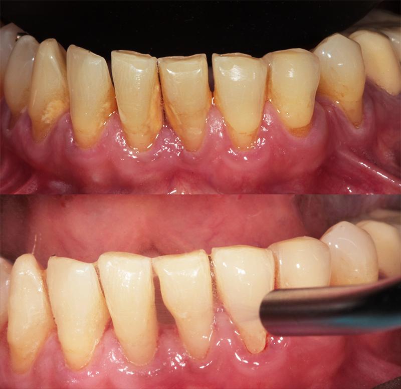 limpieza dental profunda en tijuana