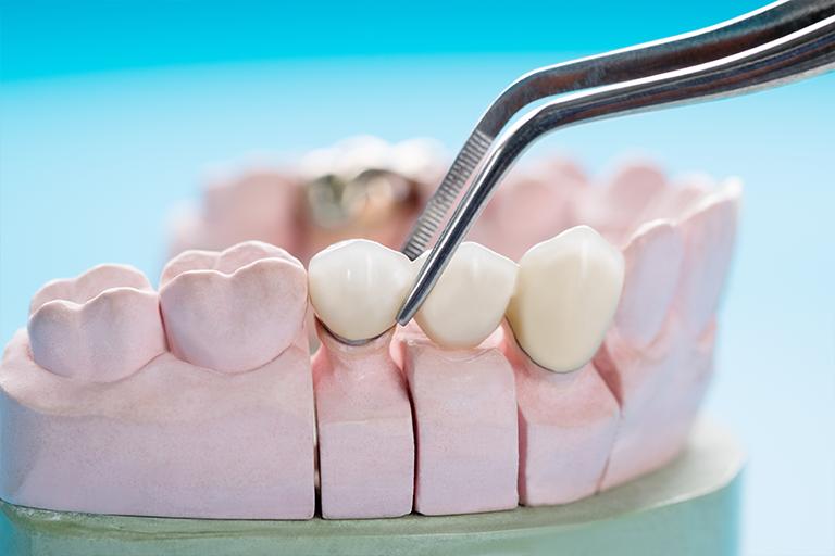 coronas dentales en tijuana