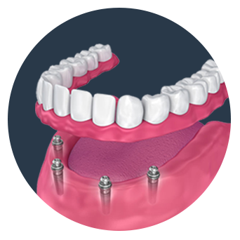 All n 4 dental implants