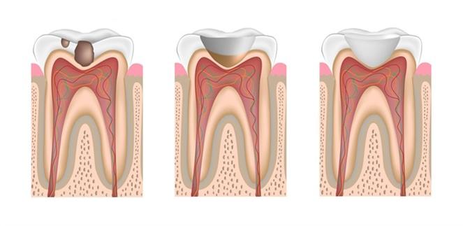 precio de resinas dentales