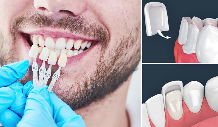 Beneficios de las carillas dentales de porcelana