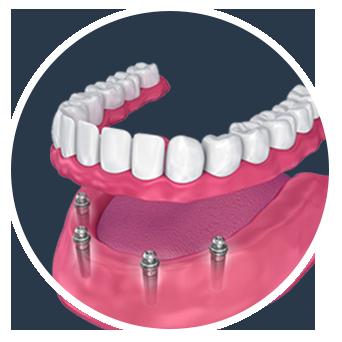 All n 4 dental implants