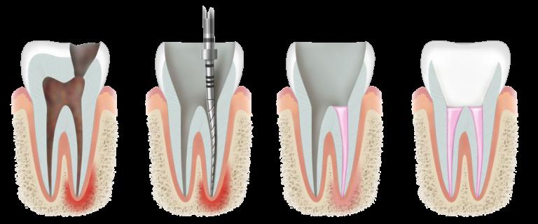 rootcanal_tijuana_dental_clinic